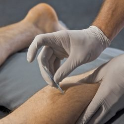 What is Functional Dry Needling? Common Q&A's